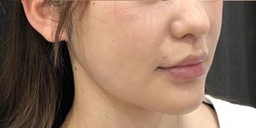 ルラ美容クリニックの脂肪吸引の症例写真[アフター]