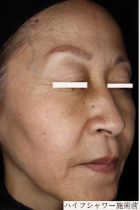 レア形成外科・美容皮膚科のリフトアップレーザーの症例写真[ビフォー]