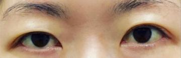さっぽろ美容クリニック 本院の目・二重整形の症例写真[ビフォー]