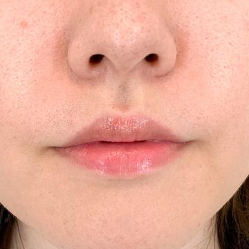 A CLINIC(エークリニック)の口元・唇の整形の症例写真[ビフォー]