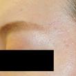 大山皮膚科の症例写真[アフター]