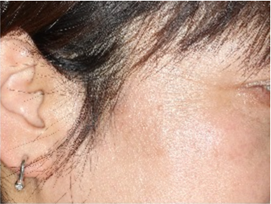 ハイドロキノン 肝 斑