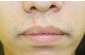 千葉中央美容形成クリニックの口もと、唇の整形の症例写真[ビフォー]