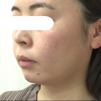 フォトIPL(ヴィーナスヴェルサ)+RFタイトニングの症例写真[ビフォー]
