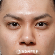 東京美容外科の鼻の整形の症例写真[アフター]