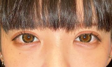 湘南美容クリニック 池袋西口院の目・二重整形の症例写真[アフター]