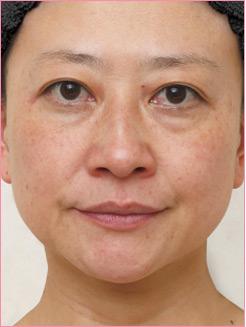 ■PRP療法(目の下・ほうれい線)の症例写真[ビフォー]