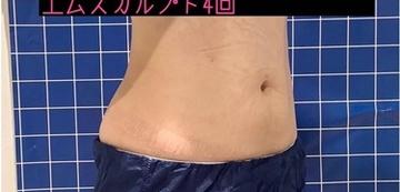 銀座長瀬クリニックの痩身、メディカルダイエットの症例写真[アフター]