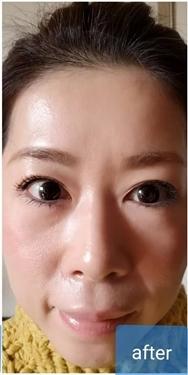 大西皮フ科形成外科医院の目元の整形、くま治療の症例写真[アフター]