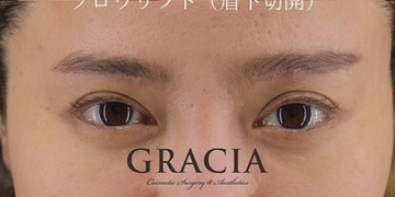 GRACIA clinic(グラシアクリニック)の症例写真[アフター]