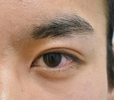 他院目頭切開術後修正※の症例写真[アフター]