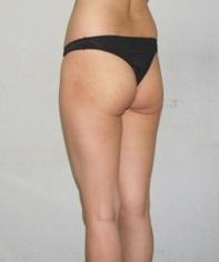 松下皮フ形成外科の豊尻・ヒップアップの症例写真[ビフォー]