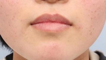 よだ形成外科クリニックの口もと、唇の整形の症例写真[アフター]