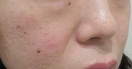 フォトシルク(120shot) 5回 毛穴・ニキビ・肌のきめの症例写真[ビフォー]