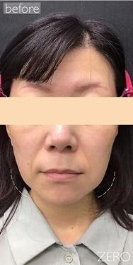 銀座ゼロクリニックの顔のしわ・たるみの整形の症例写真[ビフォー]