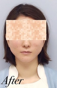 表参道スキンクリニックの症例写真[アフター]