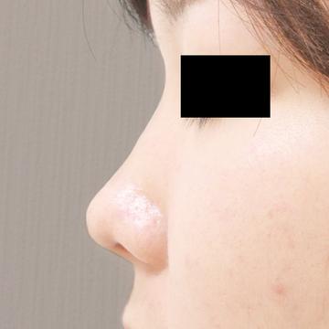 ドーズ美容外科の鼻の整形の症例写真[ビフォー]
