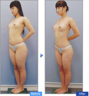 コムロクリニック(旧コムロ美容外科)の症例写真