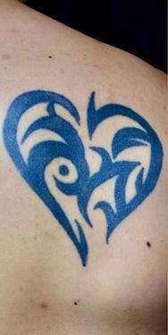 SELECT CLINIC(セレクトクリニック)のタトゥー除去の症例写真[ビフォー]