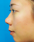 ガーデンクリニックの鼻の整形の症例写真[ビフォー]