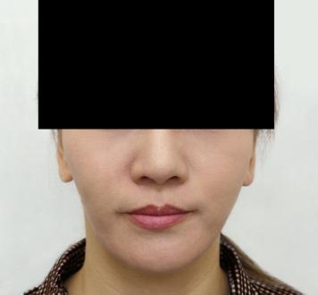 バッカルファット除去 手術前➡3ヶ月後の症例写真[アフター]