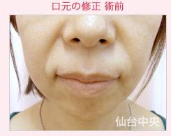 仙台中央クリニックの口もと、唇の整形の症例写真[ビフォー]