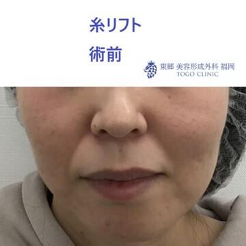 東郷美容形成外科 福岡の顔のしわ・たるみの整形の症例写真[ビフォー]