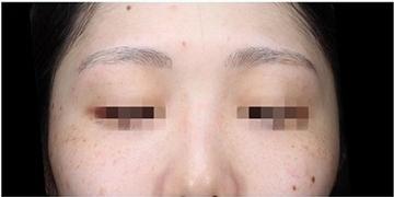 La Clinique Ginza(ラ クリニック銀座)のシミ取り・肝斑・毛穴治療の症例写真[ビフォー]