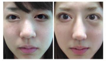 医療法人一山十会 クリニークグループの目・二重の整形の症例写真