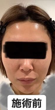 銀座長瀬クリニック 大阪院のニキビ治療・ニキビ跡の治療の症例写真[ビフォー]