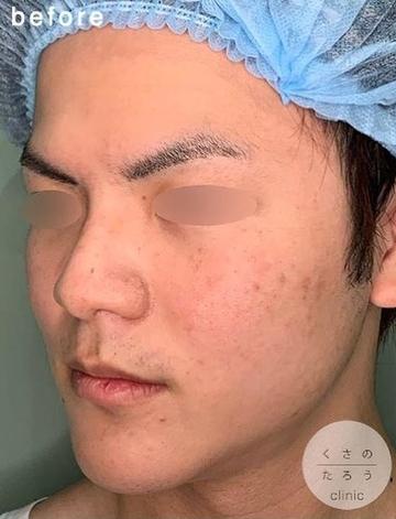 くさのたろうクリニックの輪郭・顎の整形の症例写真[ビフォー]