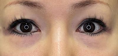長谷部医師による目の下のふくらみ取りスペシャル(クマ取り)の症例写真[ビフォー]