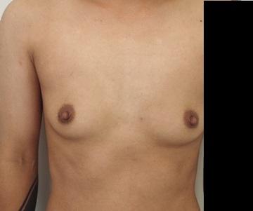 静岡美容外科橋本クリニックのその他の美容整形の症例写真[ビフォー]