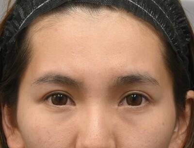 クマ取り スタンダード法と前額形成 術前と1か月の症例写真[ビフォー]