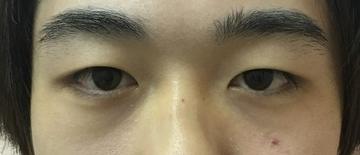 N クリニックの目・二重の整形の症例写真[ビフォー]