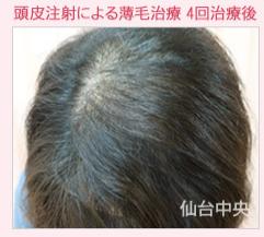 頭皮注射による薄毛治療の症例写真[ビフォー]