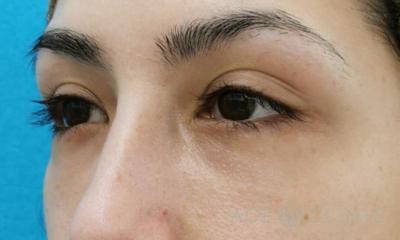 目の下のクマ・たるみ取り 経結膜ハムラ法の症例写真[アフター]