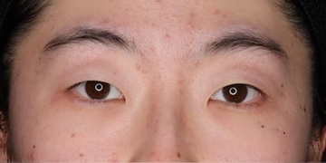 SELECT CLINIC(セレクトクリニック)の目・二重の整形の症例写真[ビフォー]