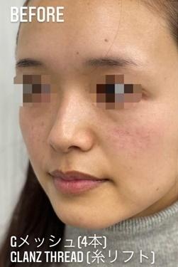 GLANZ CLINIC (グランツクリニック)の顔のしわ・たるみの整形の症例写真[ビフォー]