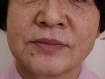 天神かよこクリニックの顔のしわ・たるみの整形(リフトアップ手術)の症例写真[ビフォー]