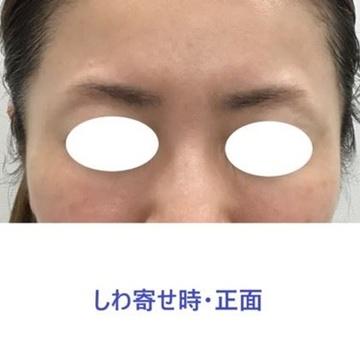 東郷美容形成外科 福岡の顔のしわ・たるみの整形(リフトアップ手術)の症例写真[アフター]