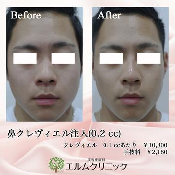 美容皮膚科  エルムクリニック京都院の鼻の整形の症例写真