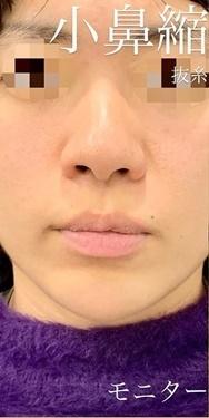 小鼻縮小術切開の症例写真[ビフォー]