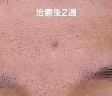 やさしい美容皮膚科・皮フ科 秋葉原院の症例写真[アフター]