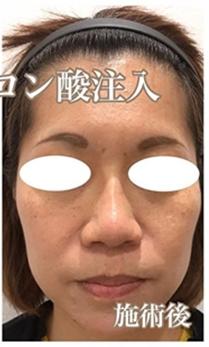 西宮SHUHEI美容クリニックの鼻の整形の症例写真[アフター]