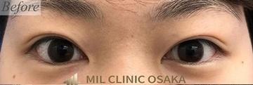 MIL CLINIC OSAKA(ミルクリニック)の目・二重整形の症例写真[ビフォー]