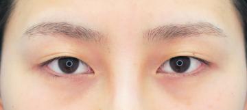 湘南美容クリニック 武蔵小杉院の目・二重の整形の症例写真[ビフォー]