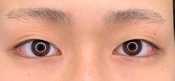 湘南美容クリニック 武蔵小杉院の目・二重整形の症例写真[ビフォー]