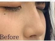 オーマイクリニック【Oh My Clinic】の鼻の整形の症例写真[ビフォー]