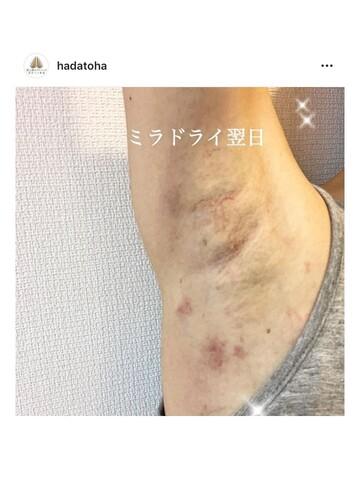 肌と歯のクリニック 東京ベイ幕張のわきが手術・多汗症治療の症例写真[アフター]